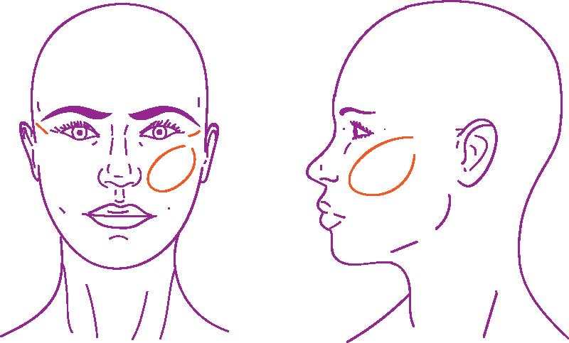 Aumento de mejillas en feminización mediante lipofilling