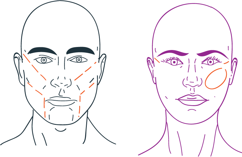 Cheek augmentation in facial feminization surgery
