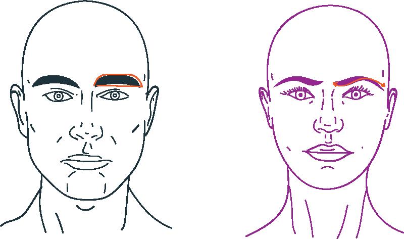 Cirugía de elevación de cejas para feminizar rostro