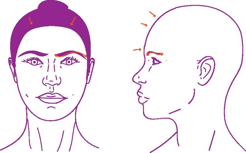 Cirugía de feminización facial en tercio superior