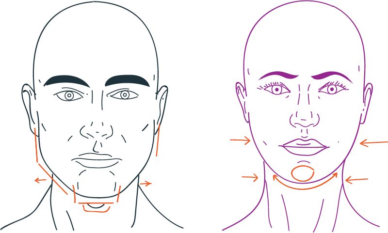 Cirugía de feminización facial en tercio inferior