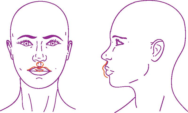 Elevación del labio superior en cirugía de feminización facial