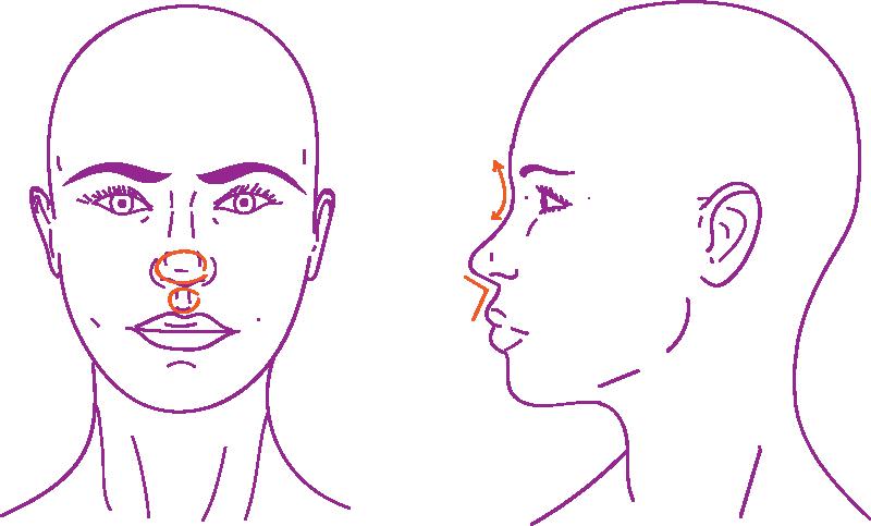 Nose feminization rhinoplastia for transwomen
