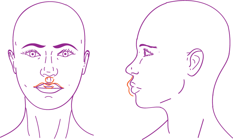 Lip lift in facial feminization surgery