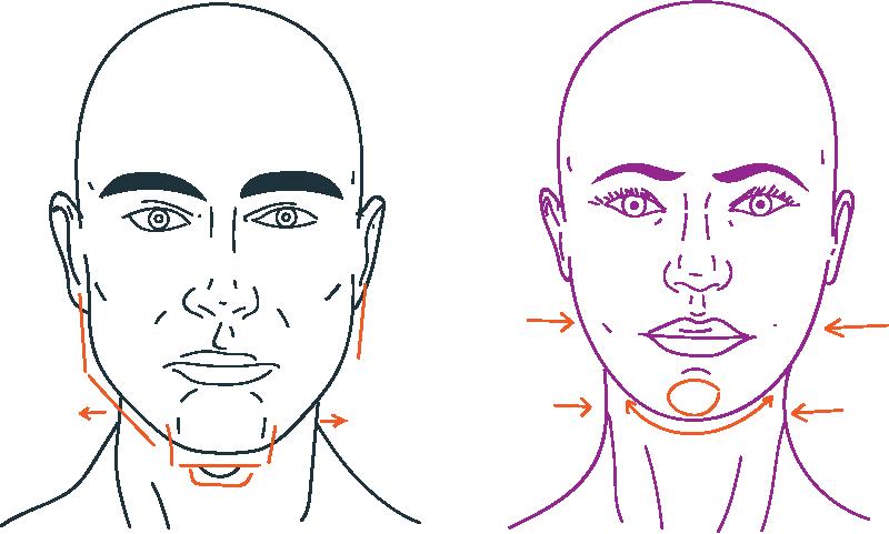 Lower facial feminization surgery FFS