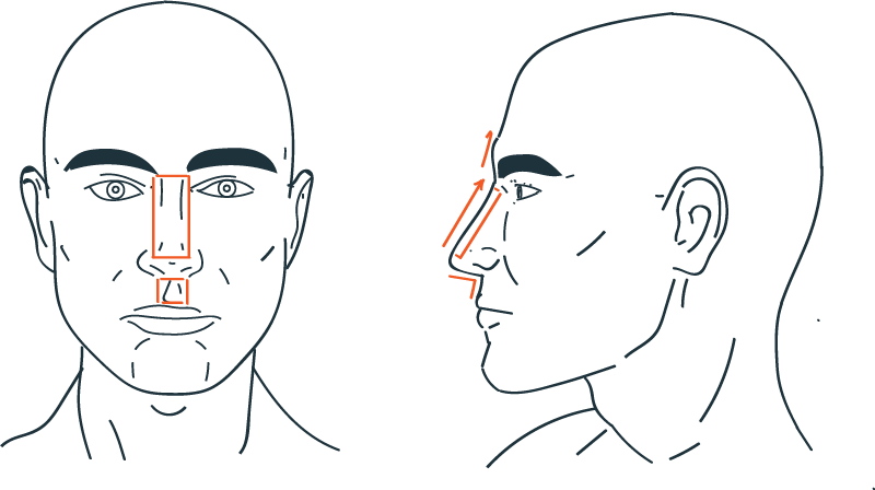 Male nose rhinoplasty