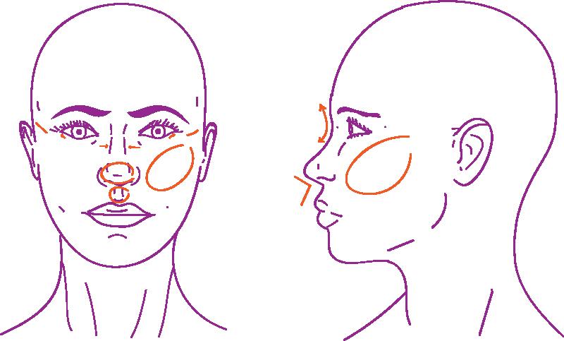 Middle face procedures in facial feminization surgery