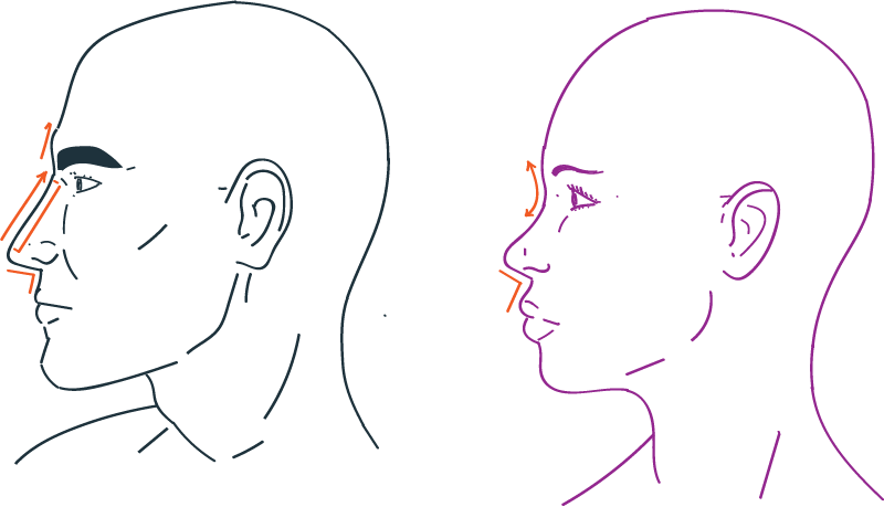Nose rhiniplastia in Facial Feminization Surgery