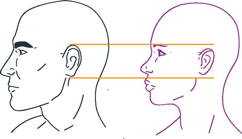 Reducción de orejas en feminización facial