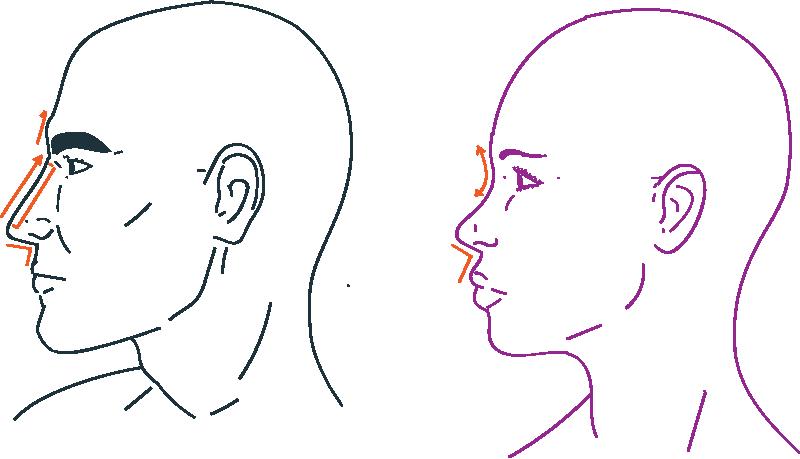 Rinoplastia de feminización facial en transexuales