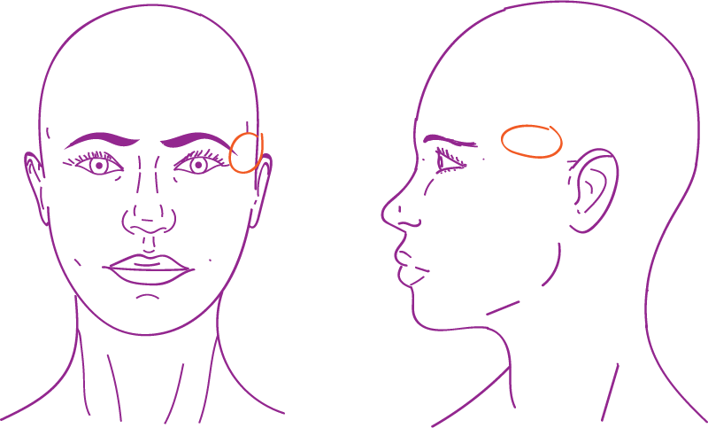 Facial Feminization of the temple area with lipofilling