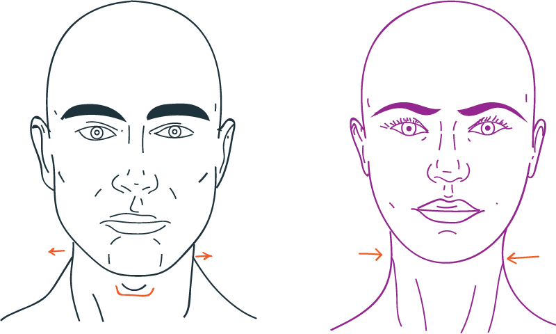 Tracheal save in facial feminization surgery