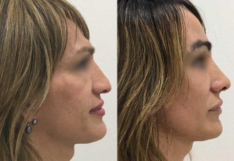 Facial feminization surgery before and after - Facifem Dr