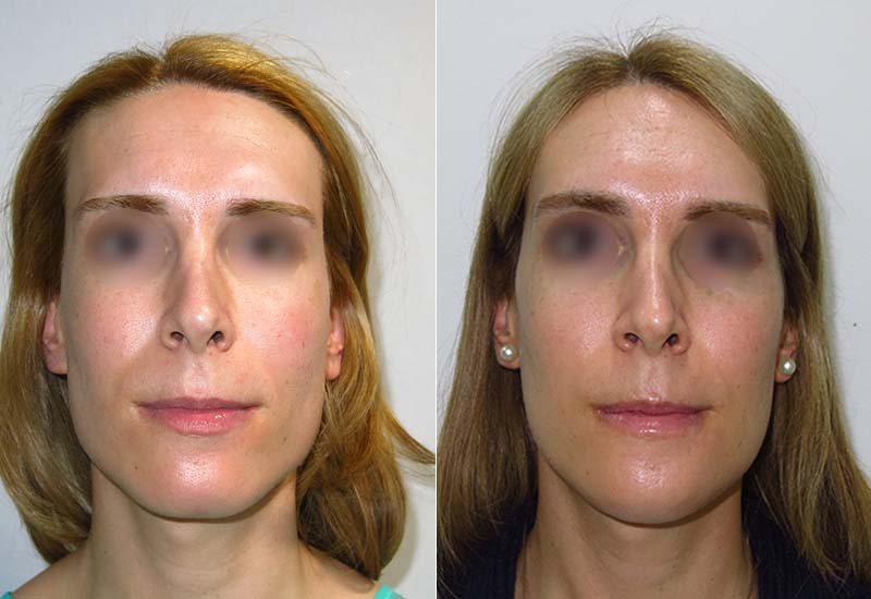 Ultrasonic anguloplasty before and after