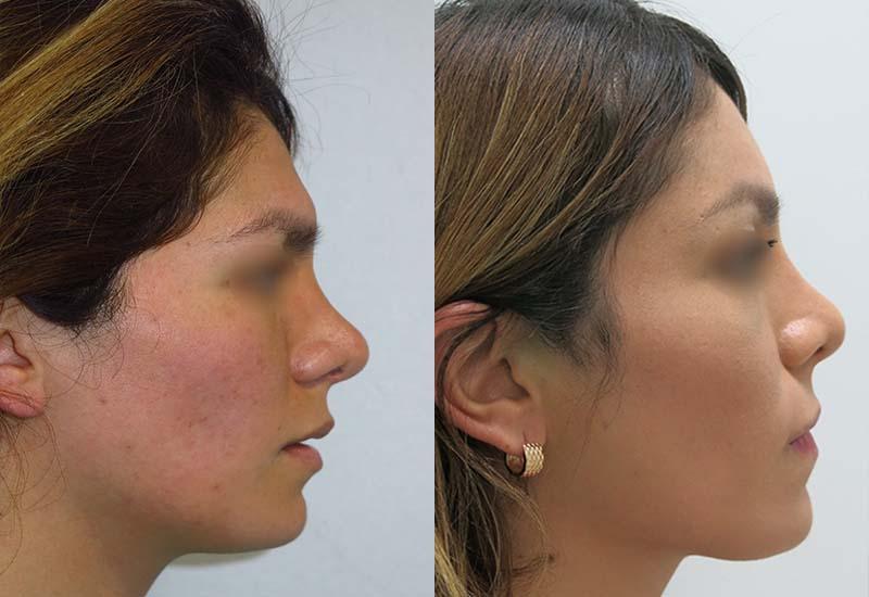 Forehead feminization antes y despues