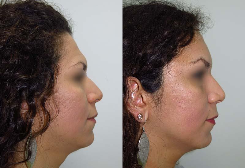 Frontoplastia antes y despues