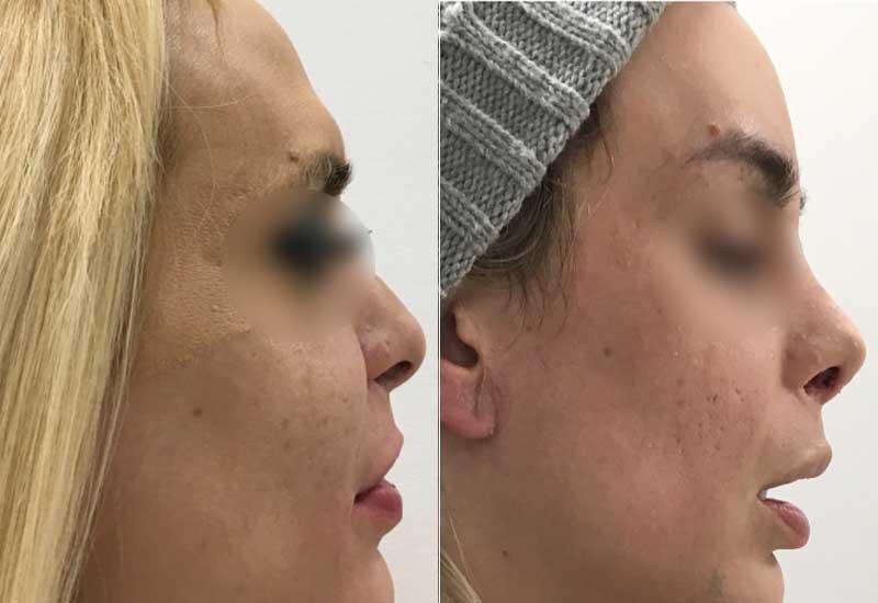 Frontoplastia y rinoplastia de feminizacion antes y despues