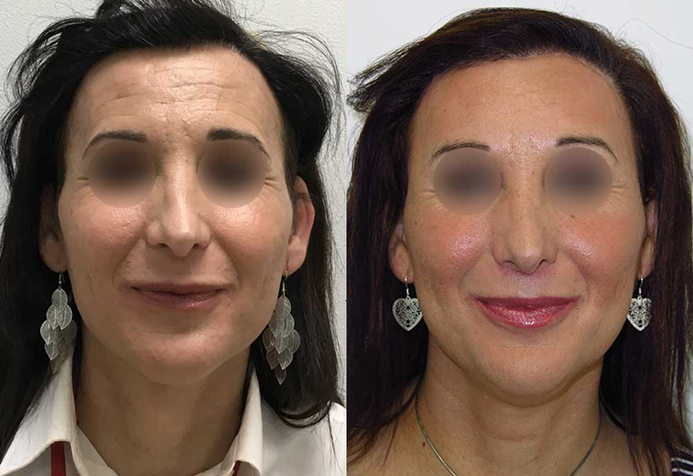 Lola's facial feminization before and after
